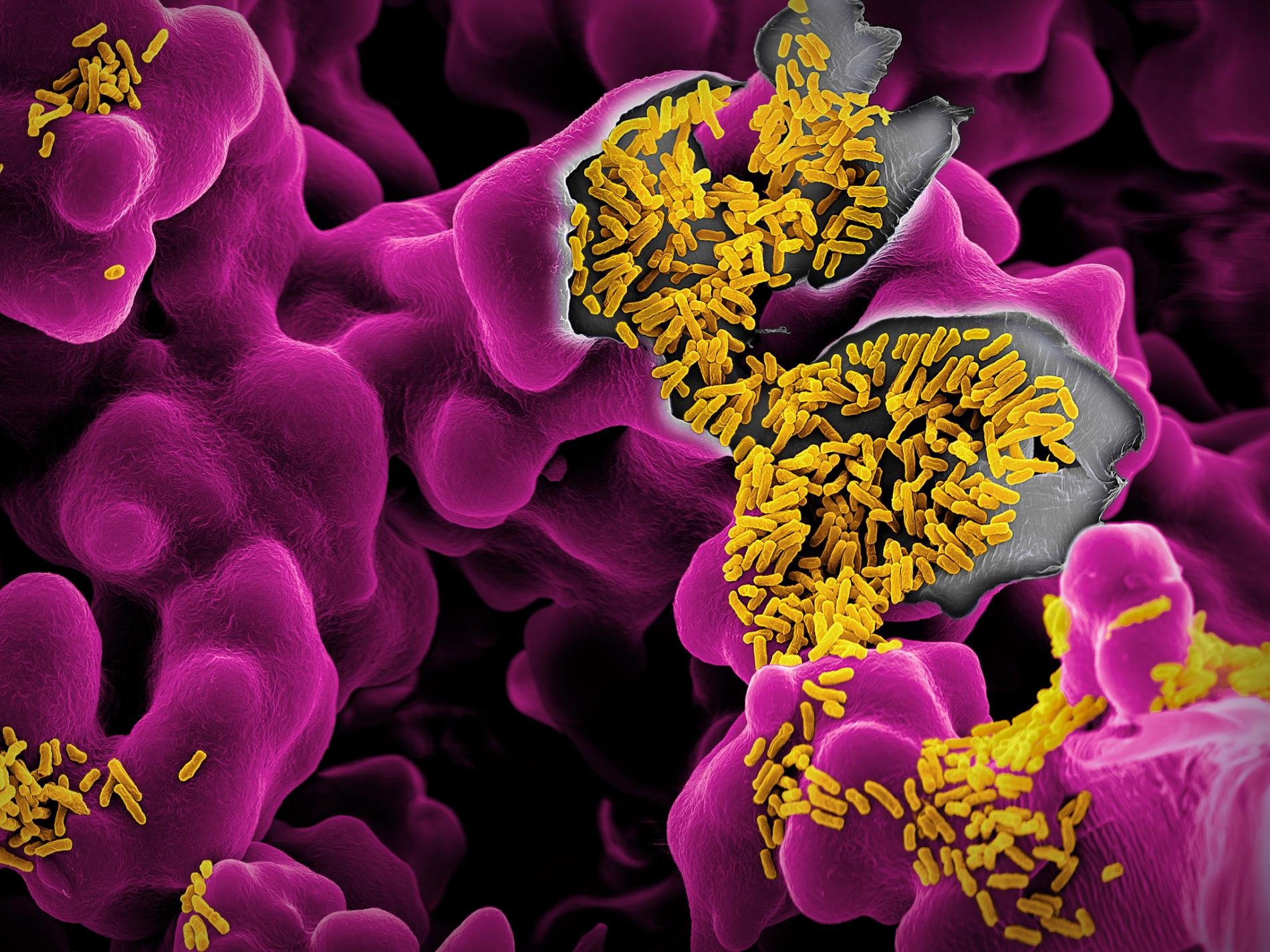 Les microbes sont-ils de nouveaux alliés dans la lutte contre le cancer ?
